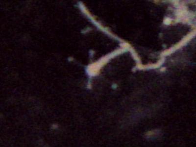 エダアシクラゲのポリプ