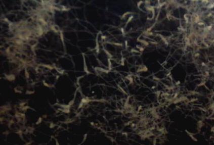 エイレネクラゲのポリプ